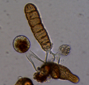 Microscopic photo of the development of three sporophytes growing out of a fertilized female gametophyte